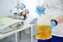 Tratamento com plasma convalescente de COVID-19 grave: estudo mostra menor necessidade de oxigênio e melhor sobrevivência nos receptores de plasma